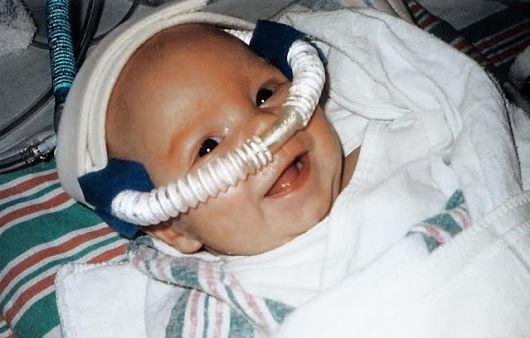 CPAP-Machine-for-Newborns
