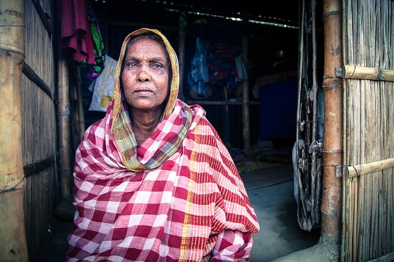 Diabetes in Bangladesh