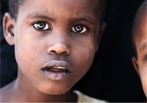 Diseases in Tanzania