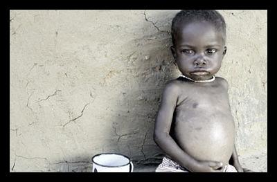 Malnourishment