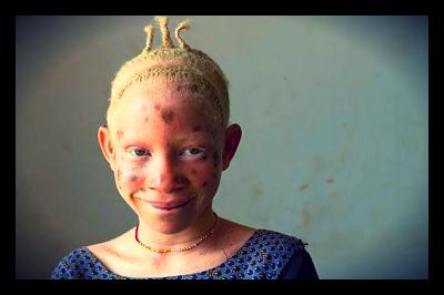 Tanzanian_Albinos_in_danger