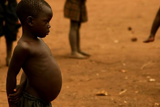 kwashiorkor nutrition and food aid organizations Home » information centers » food & nutrition information center » nutrition assistance programs » hunger and food security » hunger relief organizations hunger relief organizations feeding america.