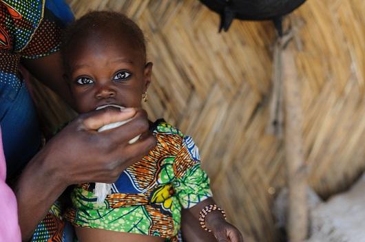 malnutrition_in_South_Sudan