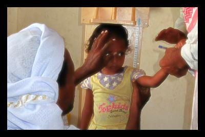 yemen_malnutrition